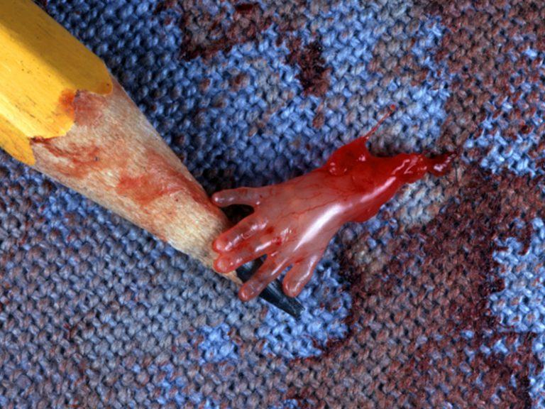 metody chirurgiczne